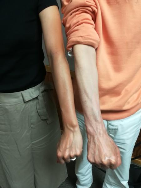 腕の黒さ自慢。